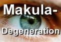 Die Augenkrankheit Makula Degeneration